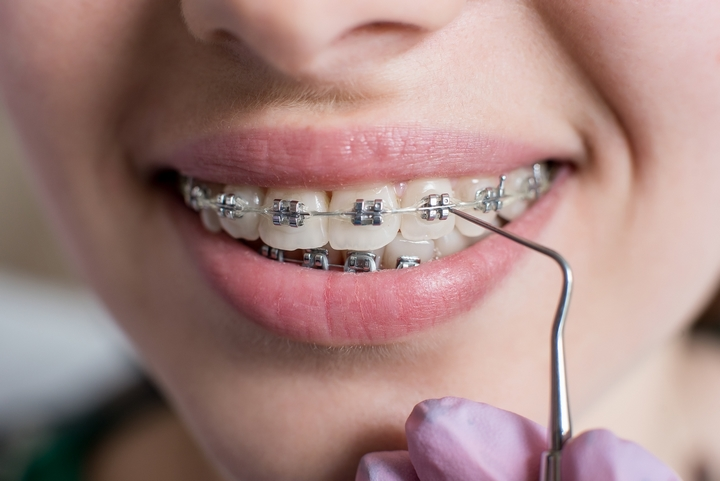 5 Types of Dental Braces for the Millennial Girl