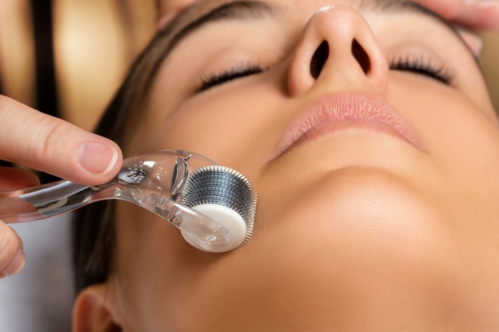 5 Most Common Side Effects of Microneedling Procedure